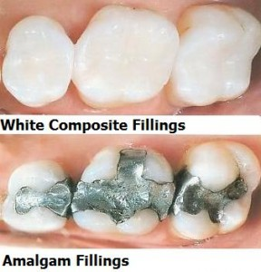 White-Fillings-Las Vegas